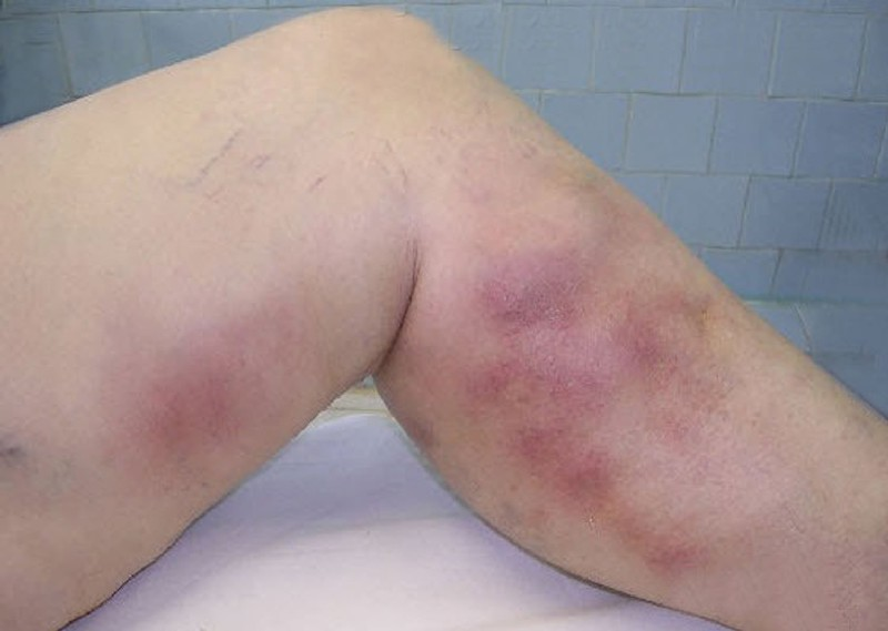 Мазь, которая лечит варикоз и даже язвочки на ногах и темные пятна